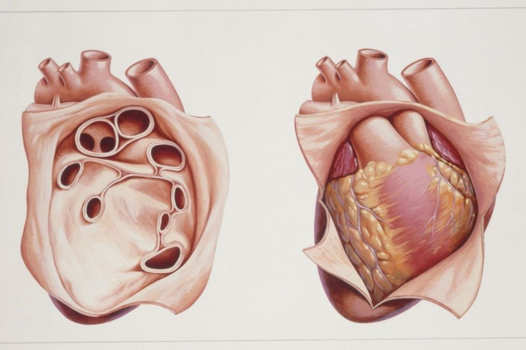 Небольшое количество жидкости обеспечивает плавное движение сердца в перикарде