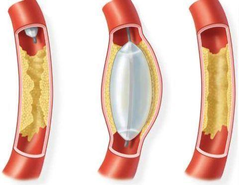 Баллонная ангиопластика при синдроме Бадда-Киари