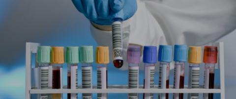 Биохимический анализ важен при диагностике любого патологического заболевания.