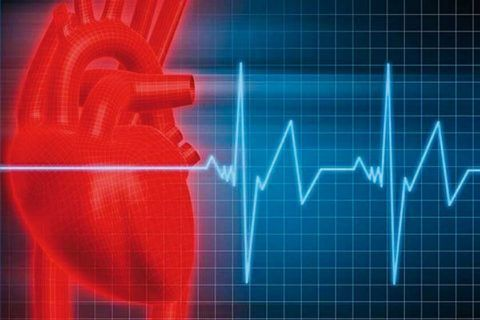 Диагностируют синусовую тахикардию при ЧСС 100-150 ударов в минуту