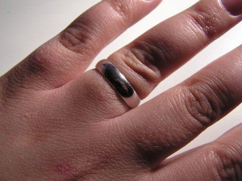 Отечность и жжение рук при задержке жидкости в организме и повышении ДАД