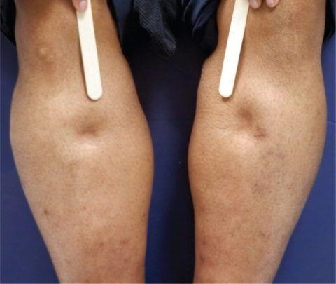 Отек ног — один из симптомов скопления большого количества экссудата в околосердечной сумке