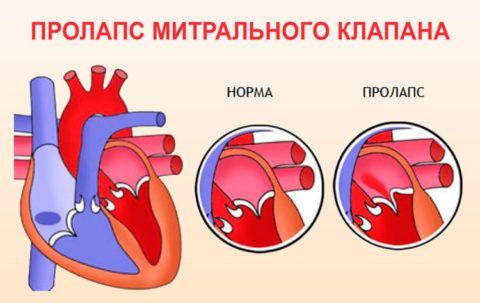Первичный пролапс митрального клапана