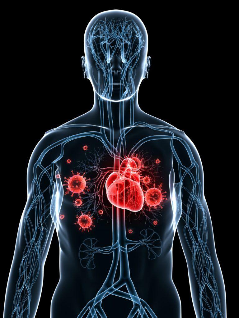 Инфекционный эндокардит - заболевание с острой и подострой формами, часто бактериальное: причины, симптомы и лечение