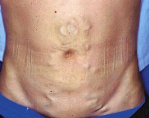Расширение вен на брюшине при синдроме Бадда-Киари