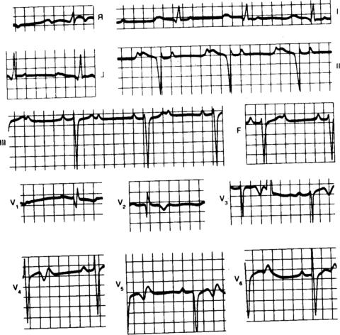 Синусовый ритм с эпизодами нарушения на ЭКГ
