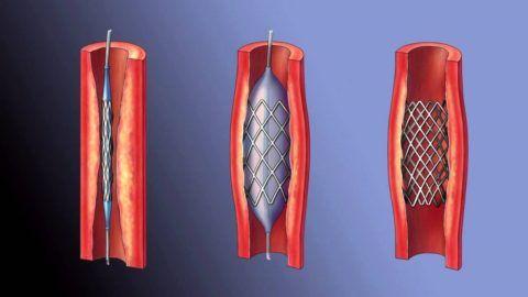 Стентирование: установка стента в просвет сосуда