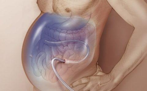 Устранение асцита лапароцентезом при синдроме Бадда-Киари