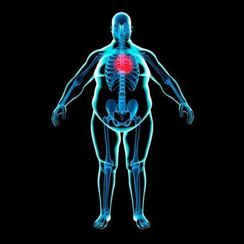 Избыточный вес увеличивает показатели артериального давления.