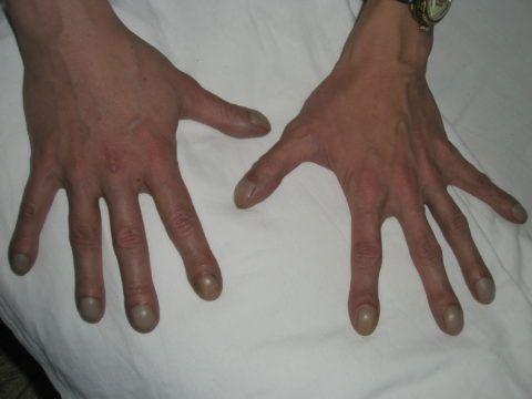 Изменение пальцев по типу барабанных палочек