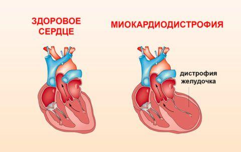 Отличия здорового и пораженного сердца
