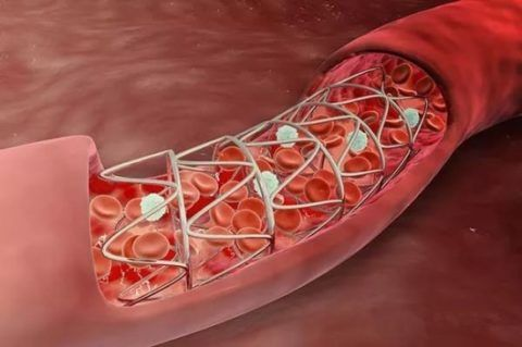 После стентирования сосуд наиболее уязвим для развития тромбоза
