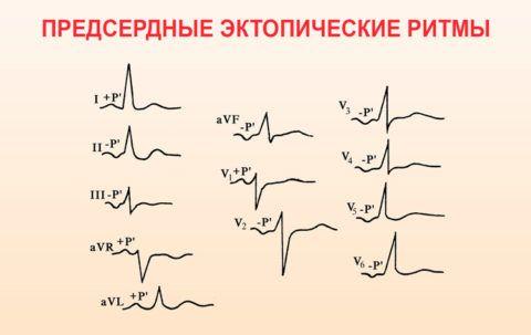 Пример того как выглядят эктопические ритмы