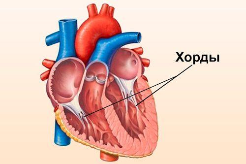 Дополнительная, ложная хорда левого желудочка сердца у ребенка: что это такое?