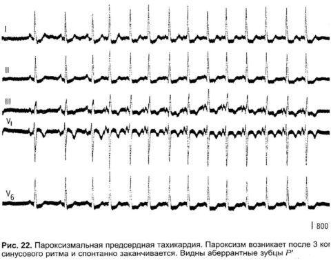 Приступ предсердной тахикардии на кардиограмме