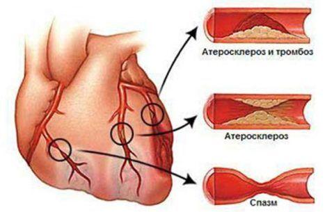 Проблемы коронарных артерий
