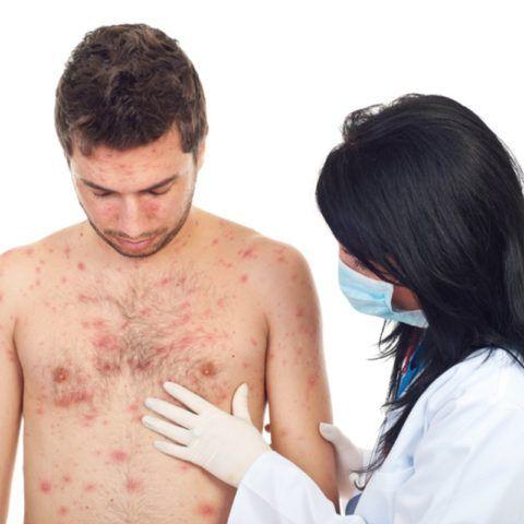 Сифилис – причина возникновения аневризмы.