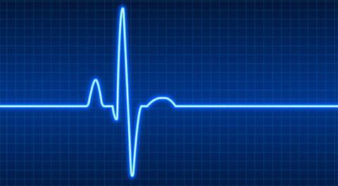 В норме показатели пульса составляют 60-80 ударов в 1 минуту
