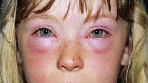 Аллергическая реакция на препараты