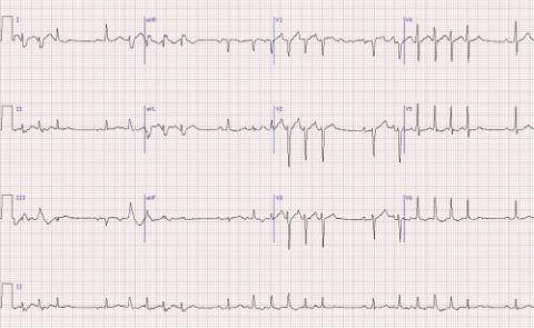 Диагностика осуществляется с помощью электрокардиографии и других методов