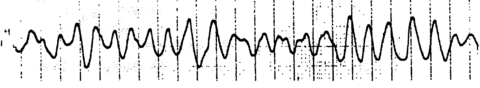 Фибрилляция представлена хаотичным ритмом