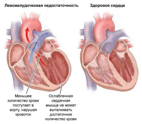 К левожелудочковой недостаточности приводят сердечные патологии: миокардит, кардиомиопатия и пороки.