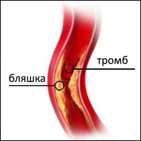 На фото атеросклеротическое и тромботическое образование в сосуде.
