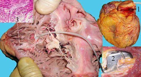 На фото постинфарктный кардиосклероз