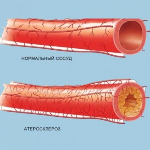 На фото признаки атеросклероза сосудов.