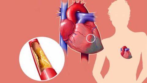 Одной из главных причин патологии является ишемическая болезнь сердца