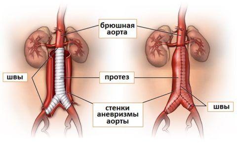 После операции кровоток в месте постановки протеза полностью возобновляется.