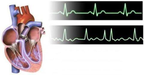 При асистолии прекращается биоэлектрическая активность сердца