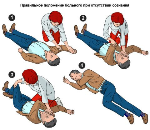 При появлении дыхания пострадавшего укладывают на бок