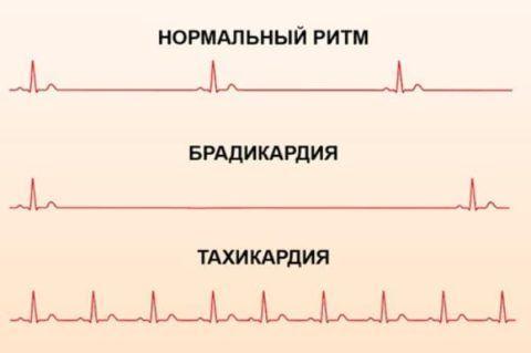 Пример того как выглядят изменения пульса на кардиограмме