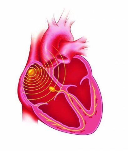 Проводящая система представляет собой сложный комплекс кардиомиоцитов