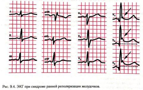 Ранняя реполяризация сердечных желудочков