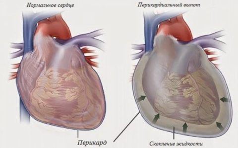 Скопление жидкости в перикарде провоцирует нарушение всех функций и систем организма.