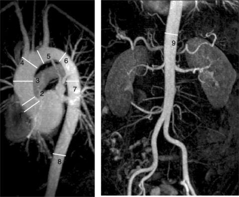 Точным методом диагностики является аортография с контрастом