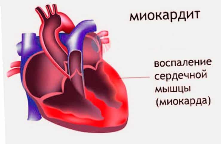 Миокардит – воспаление области сердечной мышцы.