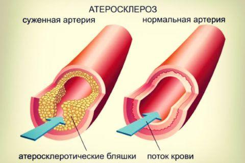 Атеросклероз повышает риск развития порока клапана сердечной мышцы.