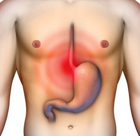 Боль в области желудка проявляется при абдоминальном типе инфаркта.