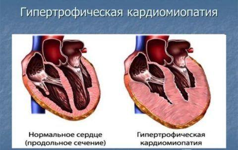 Болевые ощущения появляются только при гипертрофической кардиомиопатии.