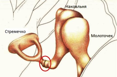 Чаще всего, «мышечный» пульс в ушах – это напряжение между наковальней и стремечком