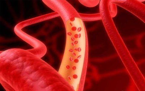 Эффект расширения артерий снижает нагрузку на миокард
