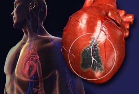 экстрасистолия органического характера возникает на фоне поражения сердечной мышцы и сосудов.
