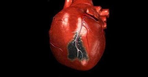 Инфаркт сопровождается нестерпимой жгучей болью в области левого подреберья.