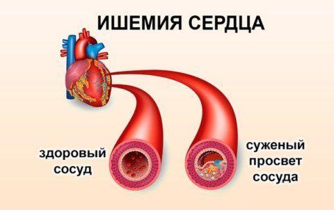 Ишемическая болезнь сердца характеризуется сужением просвета кровеносных сосудов и увеличением кровяного давления в органе.