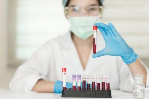 Изменения электролитного состава крови