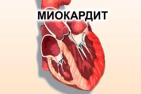 Миокардит обусловлен воспалением сердечной мышцы, провоцирующим тянущую боль и одышку.