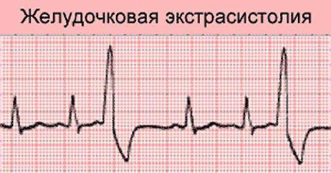 На фото кардиограмма при диагнозе «желудочковая экстрасистола».